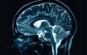 Imagen de la tomografía de un cerebro.
